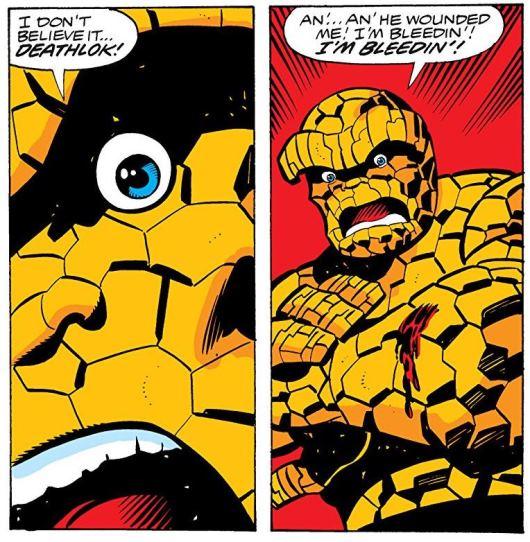 Impensable : Ben Grimm saignant  © Marvel Comics